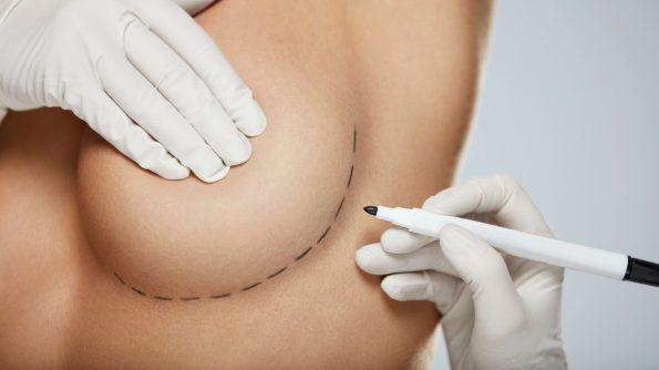 Die Brustvergrößerung ist einer der am häufigsten durchgeführte Eingriff der Plastischen Chirurgie.